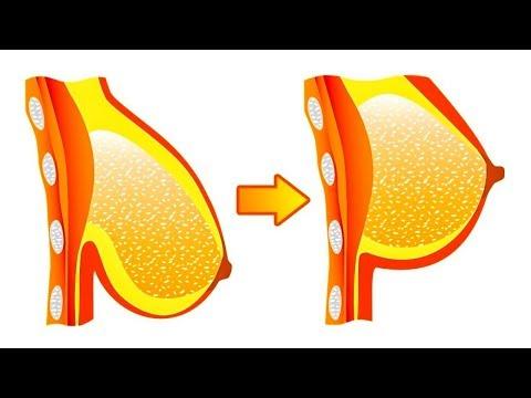 Implanty die Brüste des Preises