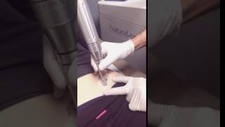 Laser Tattoo Removal Lower Stomach