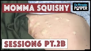 Steatocystomas & Momma Squishy: Session 6 Part 2B
