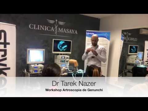 Artrita tratamentul articulației cotului umărului
