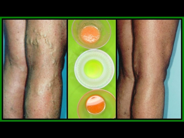 GET RID OF VARICOSE VEINS WITH 3 POWERFUL EFFECTIVE TREATMENTS |100% WORKS | Khichi