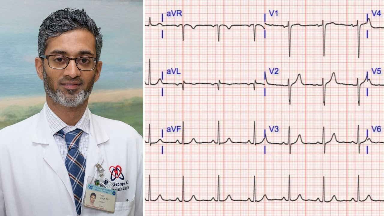 """AATS Atrial Fibrillation Mini Theater with Dr. Isaac George: """"A Better Way to Obtain NSR"""""""
