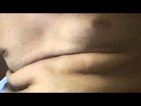 Laboratorio di perdita di grasso nairobi