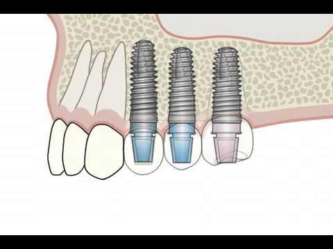 Имплантация зубов на имплантах Xive. Немецкий имплантологический центр
