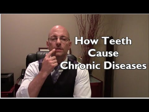 Video Causes Of Chronic Disease | Dental Connections To Chronic Diseases