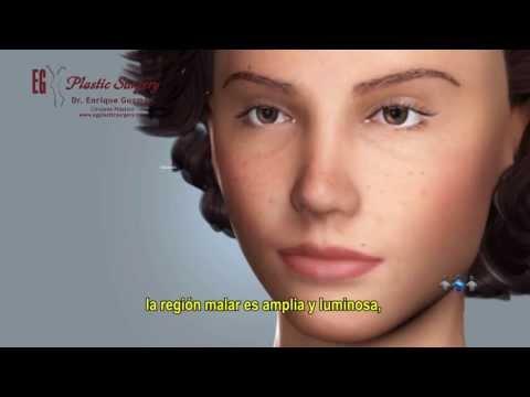 Plastic surgery dibdib pagpapalaki review