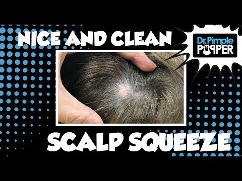 Clean Scalp Cyst Pop!