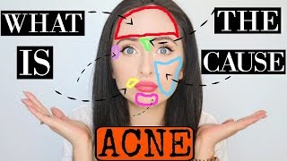 ACNE FACE MAPPING | What Causes Acne?