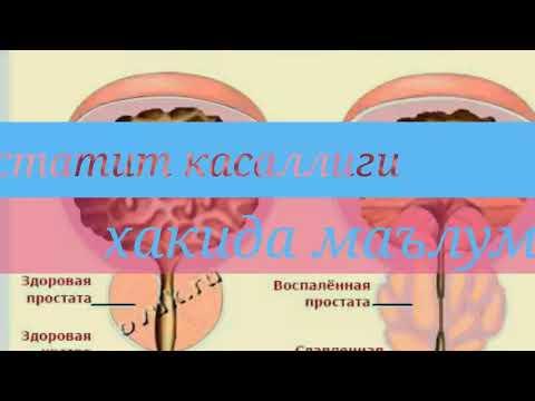 Germogli di betulla con prostata