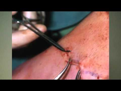 Lymphostasis visszérrel a lábán