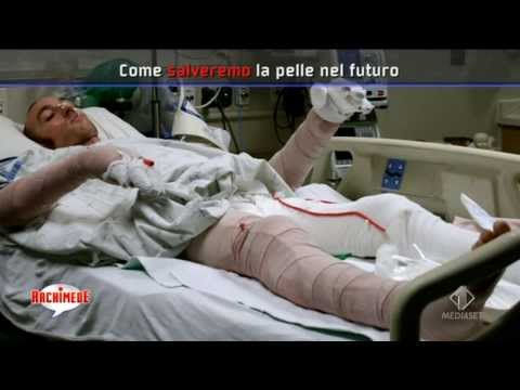 Almag 01 a video osteochondrosis