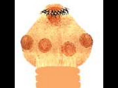 Giardia mula sa mga mata ng isang bata