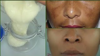 NIGHT CREAM to LOOK 10 Years YOUNGER, REMOVE WRINKLES Permanently OVER NIGHT, IT WORKS