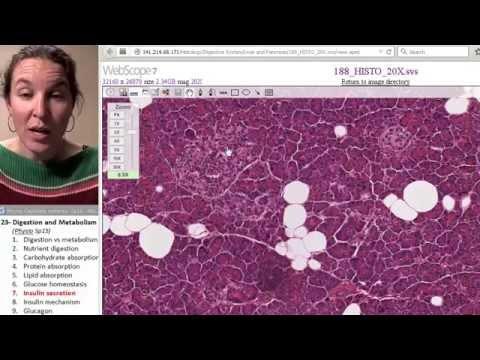 Insulindosis für Typ-2-Diabetes