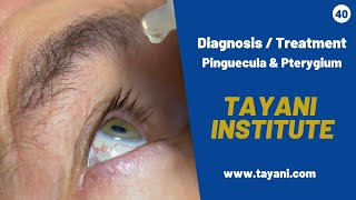 Pinguecula & Pterygium Diagnosis With Dr. Tayani | Tayani Institute
