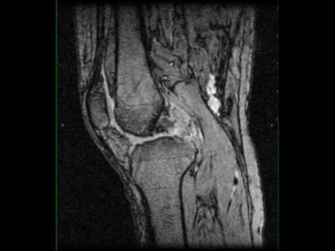 Milyen betegség artritisz és hogyan kell kezelni