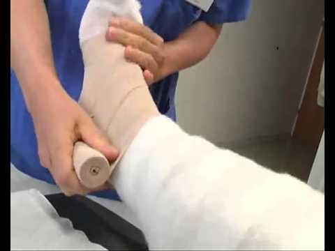 Die ergebnisreichen Mittel bei warikose der Beine