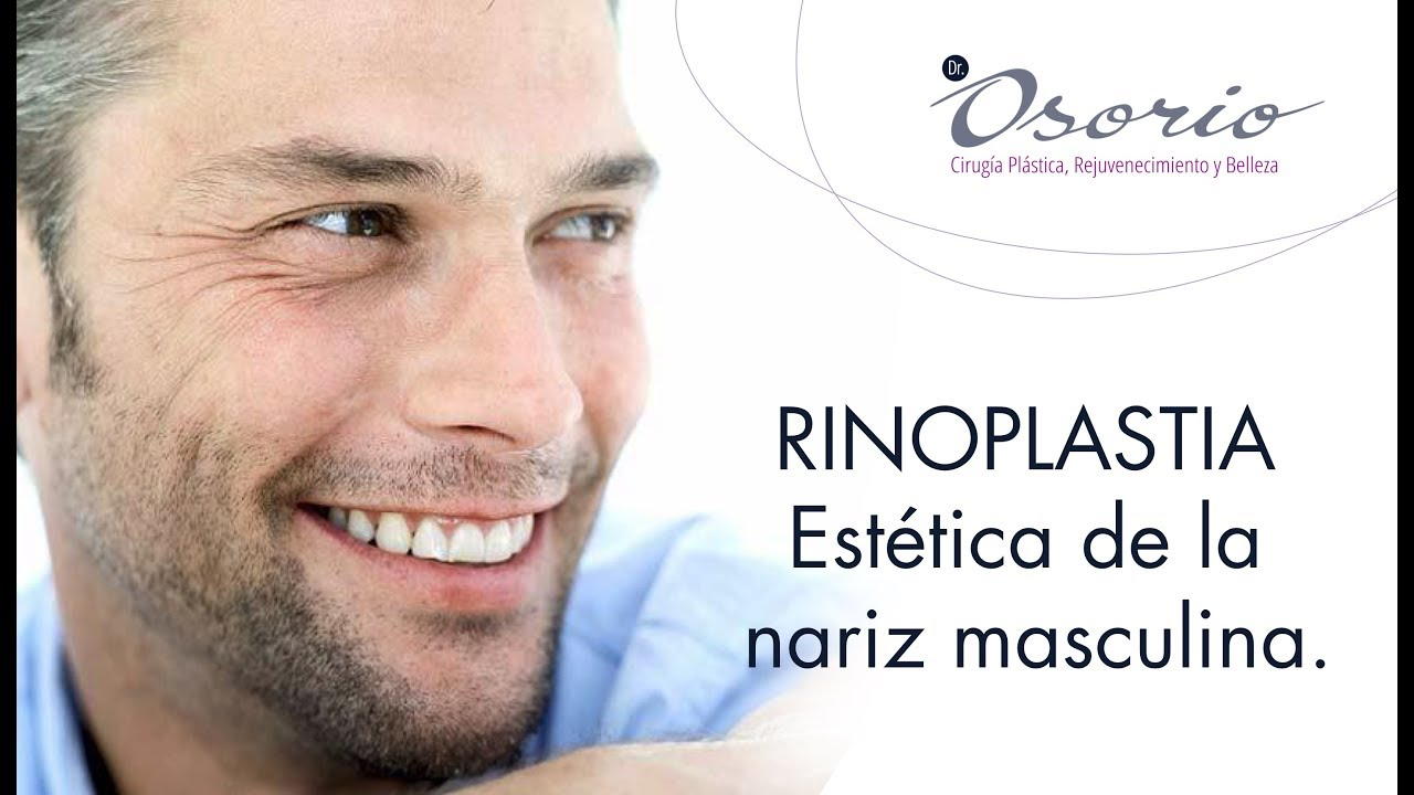 Rinoplastia capítulo 2. Estética de la nariz masculina.