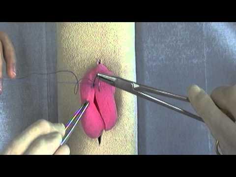 Procedura de prelevare a secreției prostatei