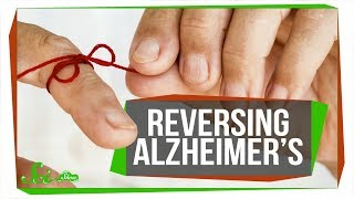 Researchers Reverse Alzheimer's Memory Loss (in Mice)   SciShow News