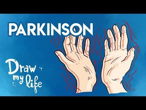 Los Síntomas y Causas De La Enfermedad De Parkinson