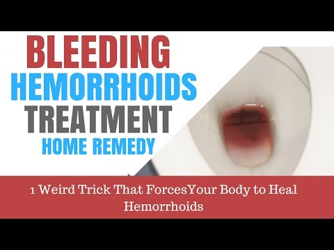 Le emorroidi esterne come smettere di sanguinare