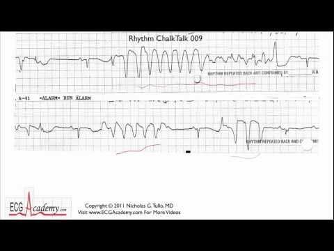 Interpretacja EKG - Poziom Zaawansowany, Cz.9.