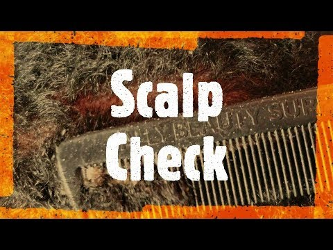 Scalp Check (Saw dust flakes)
