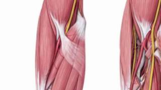Case 1 (Thymoma / PCIS) Intro with Anatomy