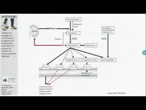 Iperplasia prostatica e la calcificazione