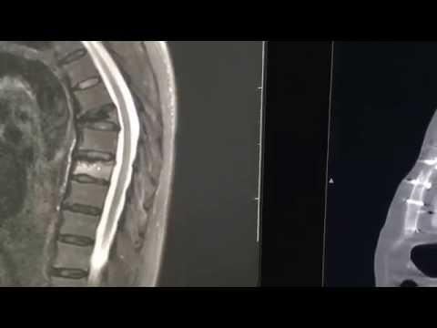 Osteoporotyczne złamanie kompresyjne - Obrazy TK, RM i RTG
