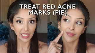 Red Acne Scars DOCTOR V |BROWN/DARK SOC| PIE| TREAT Post Inflammatory Erythema marks | ACNE CURE|