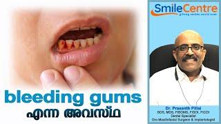 Bleeding gums  - Video