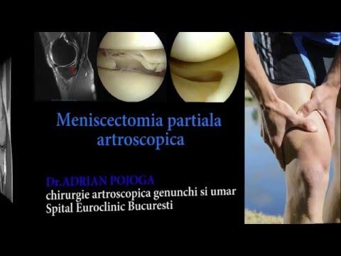 Cum pot ameliora durerile articulare ale articulației șoldului