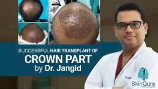 Customised Hair transplant