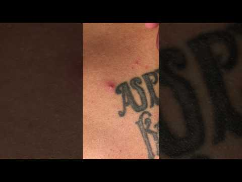 Popping a Tattoo Pimple