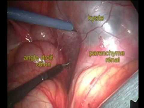 Les symptômes de la maladie par les parasites chez lenfant