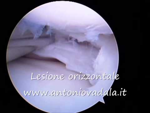 Ipertensione in osteocondrosi cervicale