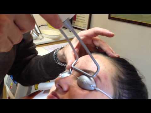 Les taches de pigment sur le cou de la raison le traitement de la photo
