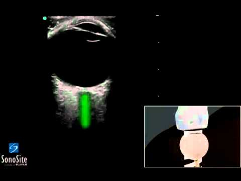 Trattamento delle lesioni tendinee delle articolazioni