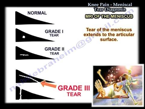 Tratamentul osteoartrozei de gradul 2 al articulației genunchiului