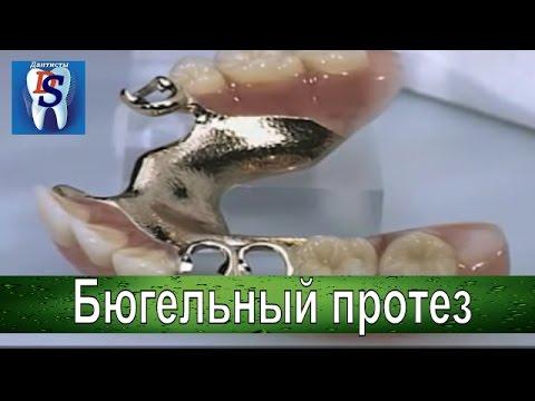 Что такое бюгельный протез. Что делать если нет многих зубов на челюсти .