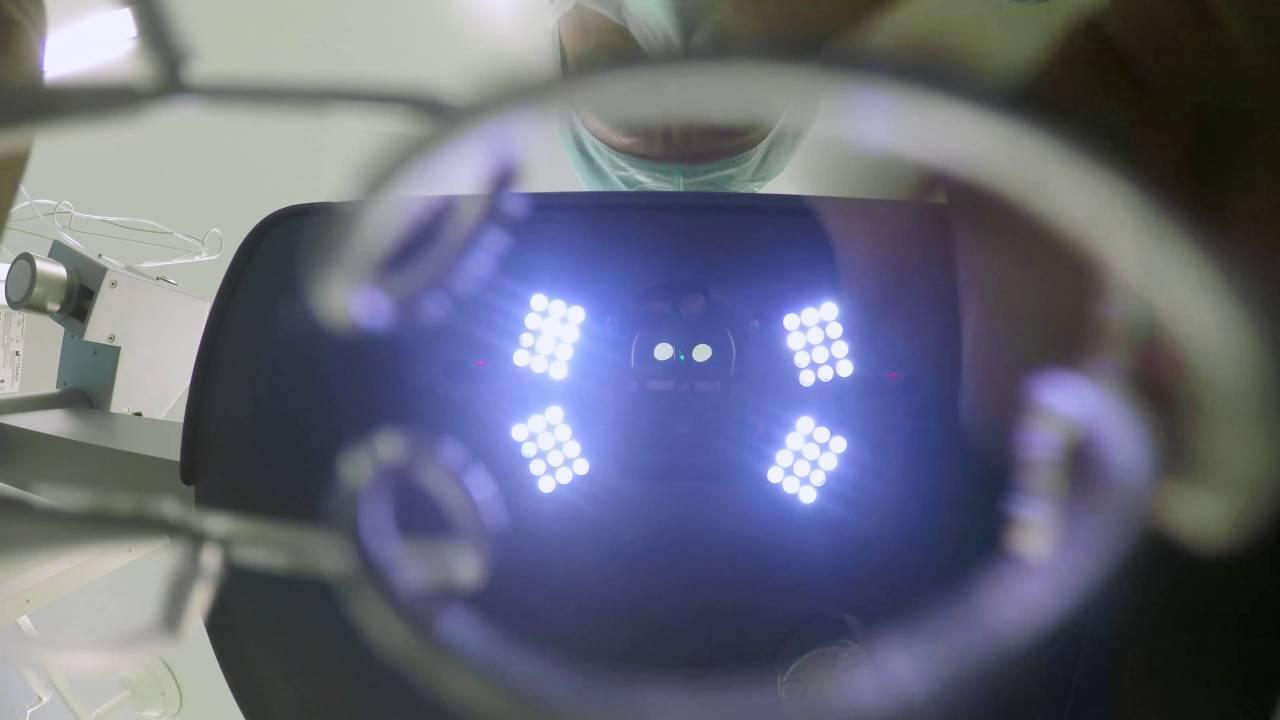 Video Dr. Frohn über das Augenlasern