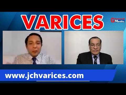 Tractiuni cu vene varicoase
