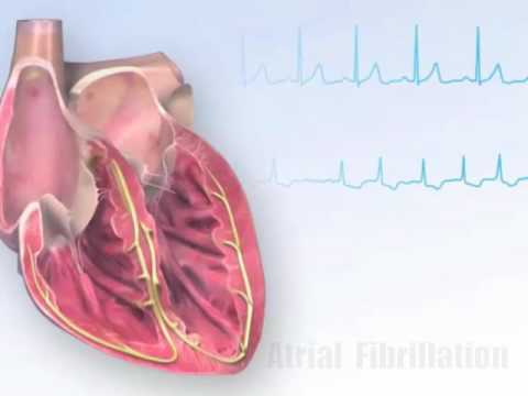Hypertensive renale
