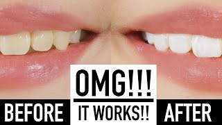 Whiten Teeth Instantly With MAKEUP?! ♥ Wengie by The Wonderful World of Wengie