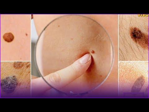 Ce este condilomul vulvar