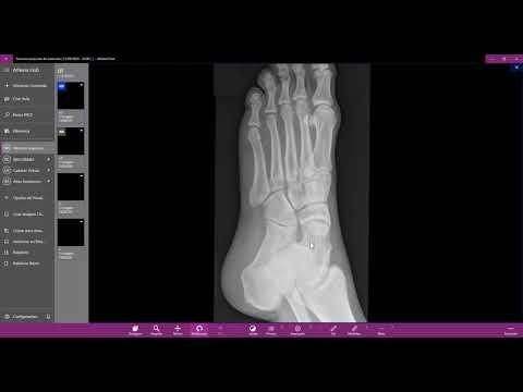 Cum se tratează artroza cu picioarele plate