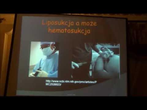 Leczenie Chichagov żylaków