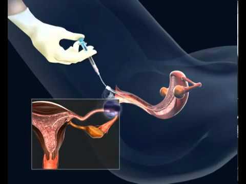 Tecnica di massaggio per la prostata